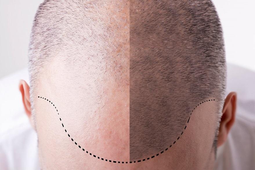 Las principales ventajas del tatuaje capilar sobre el trasplante de pelo